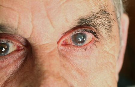 """希玛眼科医院再添""""利器""""助力屈光性白内障手术"""